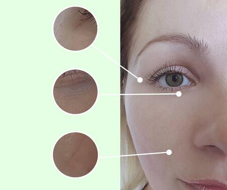 twarz kobiety zmarszczki przed i po zabiegu Zdjęcie Seryjne