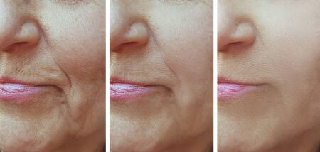 face old woman wrinkles before and after treatment 版權商用圖片