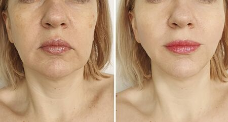 woman face wrinkles before and after treatment 스톡 콘텐츠 - 130162501