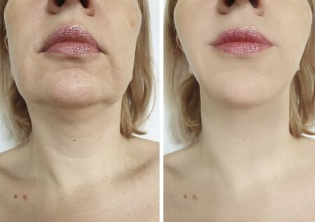 woman face lift before and after treatment Фото со стока