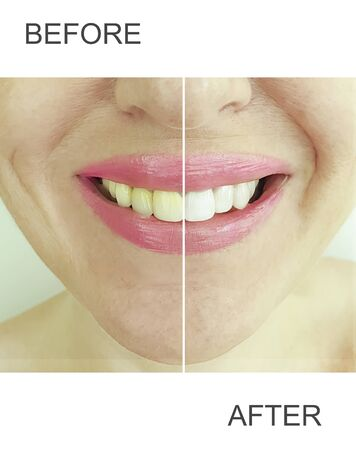 woman teeth before and after whitening medical Фото со стока