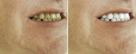male teeth before and after bleaching, treatment