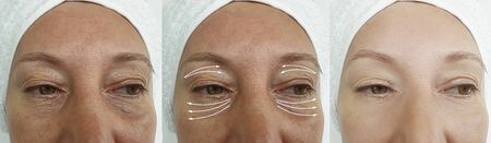 woman face wrinkles before and after treatment 스톡 콘텐츠 - 130162556