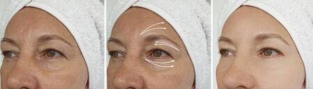 woman face wrinkles before and after treatment 스톡 콘텐츠 - 130162558