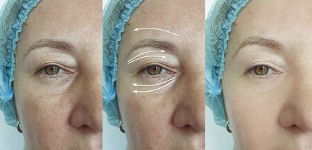 woman face wrinkles before and after treatment 스톡 콘텐츠 - 130162557