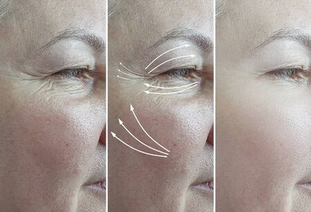 woman face wrinkles before and after treatment 스톡 콘텐츠 - 130162560