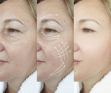 woman face wrinkles before and after treatment 스톡 콘텐츠 - 130162559