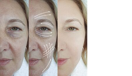 woman face wrinkles before and after treatment 스톡 콘텐츠 - 130162561