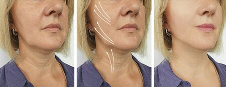wrinkles woman face before and after treatment 스톡 콘텐츠 - 130162567