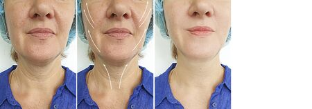 wrinkles woman face before and after treatment 스톡 콘텐츠 - 130162569