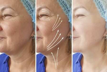 wrinkles woman face before and after treatment 스톡 콘텐츠 - 130162577