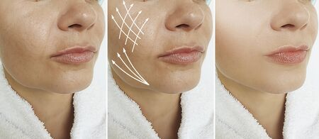 wrinkles woman face before and after treatment 스톡 콘텐츠 - 130162578