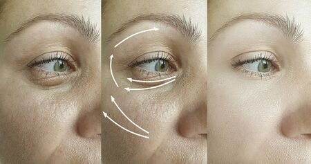 wrinkles woman face before and after treatment 스톡 콘텐츠 - 130162584