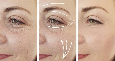 Falten Frau Gesicht vor und nach der Behandlung