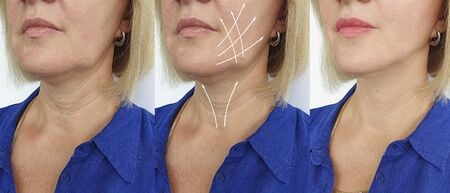 wrinkles woman face before and after treatment 스톡 콘텐츠 - 130162727