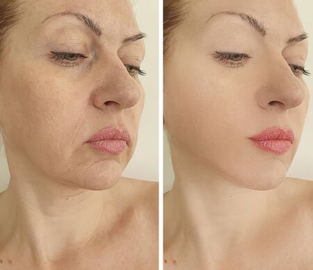 wrinkles woman face before and after treatment