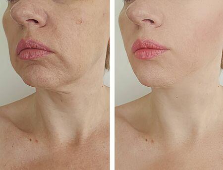 rides visage femme avant et après traitement