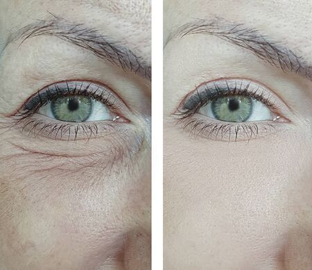 woman eyes wrinkles before and after treatment Stock Photo