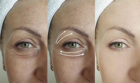 woman face wrinkles before and after treatment Stock Photo