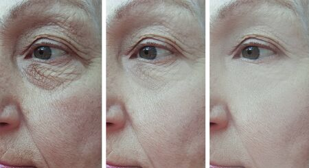 elderly woman wrinkles eyes before and after treatment