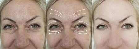woman eyes wrinkles before and after treatment 스톡 콘텐츠