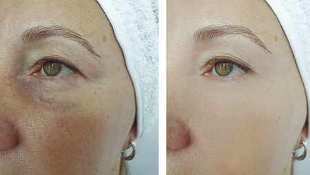 old woman wrinkles eyes before and after treatment Stok Fotoğraf