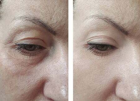 woman wrinkles eyes before and after treatment
