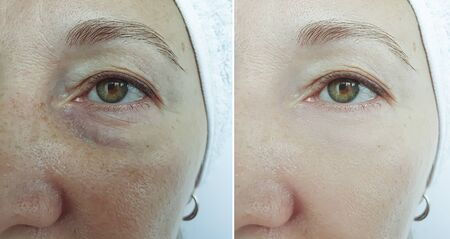 old woman wrinkles eyes before and after treatment Reklamní fotografie