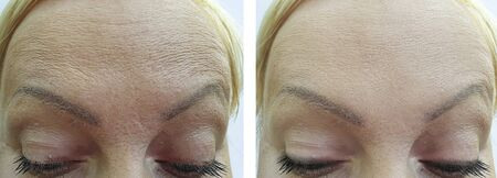 woman forehead wrinkles before and after treatment