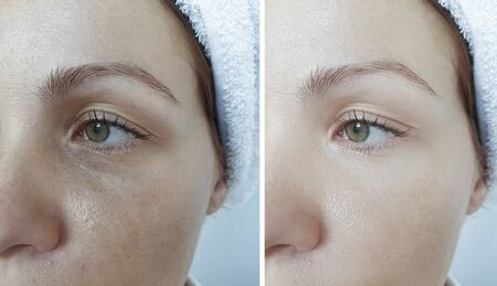 woman eyes wrinkles before and after treatment 版權商用圖片