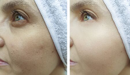 woman eyes face wrinkles before and after treatment