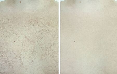 male chest hair before and after depilation