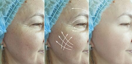 elderly woman wrinkles eyes before and after treatment arrow