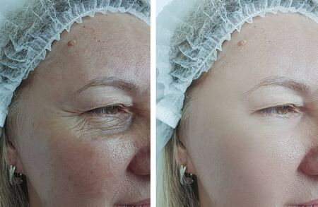 elderly woman wrinkles before and after treatment