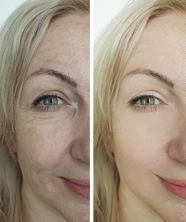 woman eyes wrinkles before and after treatment Zdjęcie Seryjne