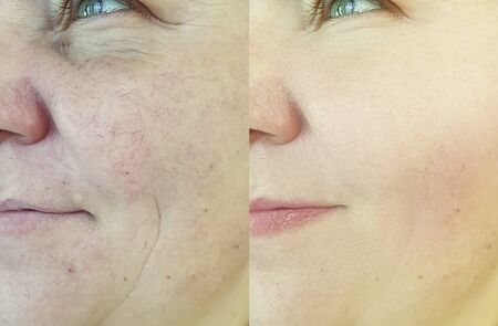 woman eyes wrinkles before and after Zdjęcie Seryjne