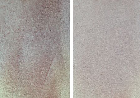 wrinkle skin before and after treatment