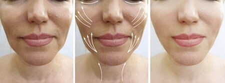 woman face wrinkles before and after treatment arrow