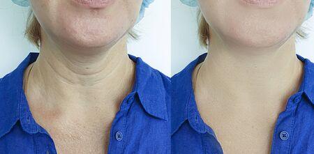 mujer arrugas cara antes y después del tratamiento Foto de archivo
