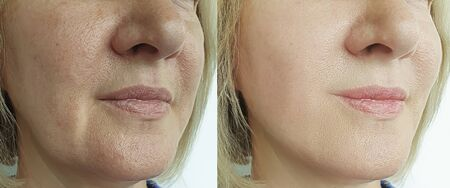 woman wrinkles face before and after treatment 写真素材