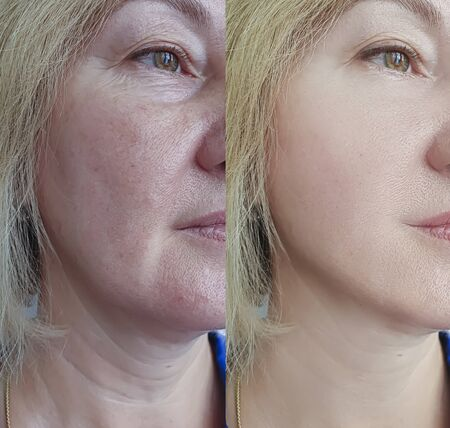 woman wrinkles face before and after treatment 写真素材 - 135242176