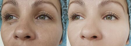 woman eyes wrinkles before and after treatment 写真素材