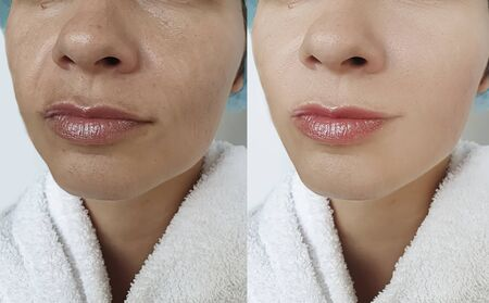 woman face wrinkles before and after treatment arrow 写真素材 - 135242205