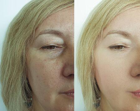Frauengesichtsfalten vor und nach der Behandlung Collage