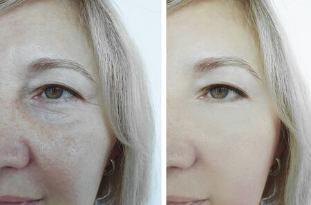 woman face wrinkles before and after treatment collage 写真素材 - 135242208