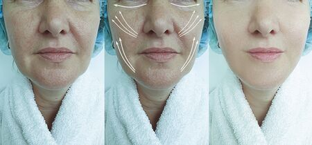 woman face wrinkles before and after treatment collage 写真素材 - 135242214