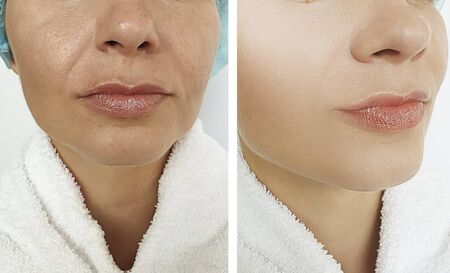 woman wrinkles before and after treatment