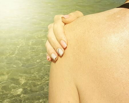 female hand shoulder sun sea sunburn