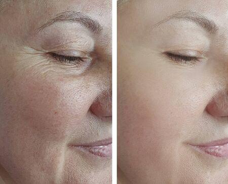 mujer cara arrugas antes y después de la flecha del tratamiento Foto de archivo