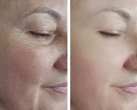 woman face wrinkles before and after treatment arrow Imagens